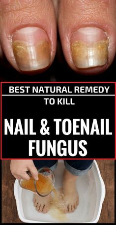 Best Natural Remedy To Kill Nail And Toenail Fungus - usefulhealthytips.us
