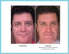 Ageloc Galvanic spa after 1 month Real Results with Nu Skin's ageLOC products: Register as a preferred customer at www.nuskin.com and get 20% reward credits with ADR program - Use code ID PL3301057 for wholesale prices!