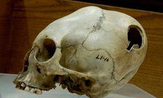 Warren Anatomical Museum | Atlas Obscura