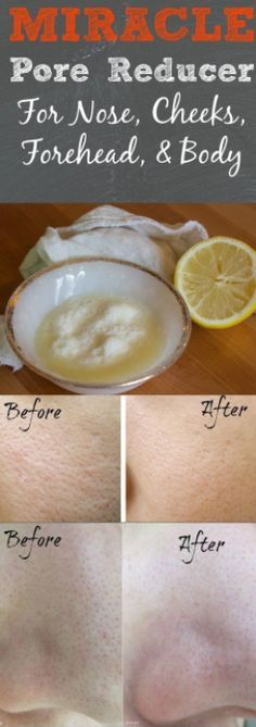 DIY PORE REDUCER FOR LARGE, STUBBORN PORES – Toned