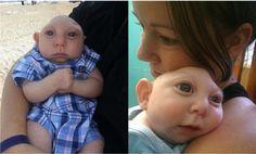 Toto dieťa sa narodilo iba s časťou mozgu a lebky. Ako žije so svojím handicapom?