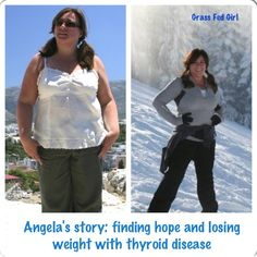 Angela's Story of Finding Hope with Hashimoto's: Her tale of thyroid woes and weight loss