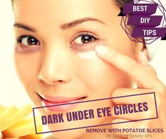 Barbie's Beauty Bits: DIY Beauty Tips To Remove Dark Under Eye Circles, With Potatoes.