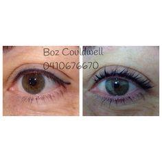Upper eyeliner and eyelash lift