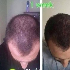 """GUYS! GET YOUR """"HAIR, SKIN, AND NAILS"""" ONLINE NOW!!! THIS PRODUCT IS SELLING LIKE CRAZY!!!   **www.LindseyStockdale.com   **Email Me: MsSkinnyWrap777@gmail.com  #fashion #style #men #love #celebrity #beach #model#vacation #nails #hair #beauty #beautiful #summer #instafashion #pretty #harley#cigar#pink #girl #hairloss #bald #model #dress #skirt #shoes #beer #outfit #sports #cars #shopping"""