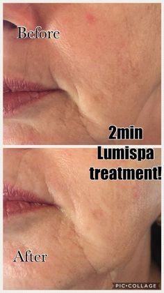You are Simply BeYoutiful Public Group Galvanic Spa, Nu Skin, Before After Photo, Instagram Ideas, Ageing, Getting Old, Body Care, Anti Aging, Skincare