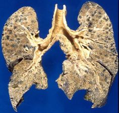 Treating COPD with diet