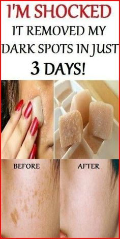 It Removed My Dark Spots and Made my Skin Clearer – Page 2 – Skiny Mom Healthy Lifestyle Tips, Healthy Tips, How To Stay Healthy, Healthy Skin, Healthy Women, Healthy Drinks, Healthy Habits, Healthy Beauty, Healthy Recipes