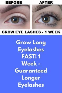 Grow Long Eyelashes FAST! 1 Week - Guaranteed Longer Eyelashes Ingredients required : Coconut oil – 1/2 tablespoon Castor oil – 1/2 tablespoon Vitamin E capsules – 2 Small container – 1 Directions : In a clean container add 1/2 tablespoon coconut oil add 1/2 tablespoon castor oil add oil extract from 2 vitamin E capsules Mix them well You may store this serum for …