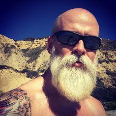 Male pattern baldness NW7 beard