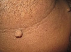 How to Get Rid of Skin Tags - The Shocking Truth