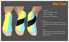 Kinesiology taping for feet - Google Search
