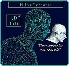 Hilos Tensores 3D Lift - Clinicas Vicario