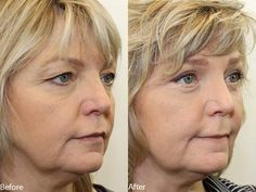https://flic.kr/p/GswsNj   Dr. Darm, Eyelids C.D. - Slide3   www.drdarm.com - Results may vary. Eyelid surgery before and after pictures performed by Dr. Ciano.