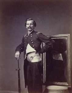 Soldier showing off his wound.