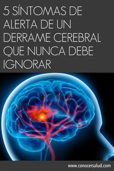 5 Síntomas de alerta de un derrame cerebral que nunca debe ignorar #salud