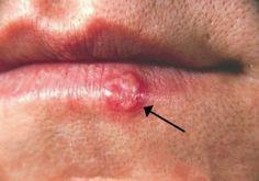 Herpes Simplex Virus (HSV) causes oral and genital lesions. Herpes Remedies, Arthritis Remedies, Psoriatic Arthritis, Health Remedies, Pimples On Lip Line, Natural Treatments, Natural Remedies, Virus Del Herpes Simple, Immune System