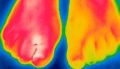 A thermographic image showing differences in skin temperature; #thermography is sometimes used to help diagnose complex regional pain syndrome. #DITI