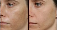# benefits # benefits # used # Benefits they - Skin Spots, Layers Of Skin, Chemical Peel, Spot Treatment, Black Spot, Acne Scars, Smooth Skin, Natural Healing, How To Apply