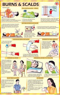 First Aid for Burns and Scalds. In case of burns, we recommend you to use a B&W Ointment, a first ai Survival Life Hacks, Survival Tips, Survival Skills, First Aid Tips, Turmeric Health Benefits, Medical Technology, Medical Coding, Technology News, Survival Gear