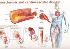 complications of hypertension including acceleration of ...