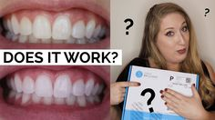 After using the Smile Brilliant sensitive teeth whitening kit Sensitive) for the past few weeks, I wanted to hop on a video and. Dentist Day, Homemade Toothpaste, Tooth Sensitivity, Emergency Dentist, Teeth Implants, Dry Skin Remedies, Teeth Health, Dental Bridge, Dental Crowns
