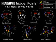 Headaches and Trigger Points