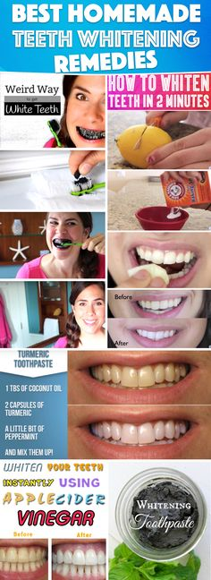 15 Super Easy Homemade Teeth Whitening Remedies to Get those Pearly Whites Back!