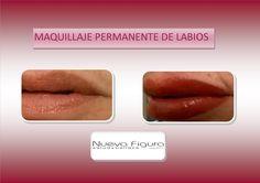 DERMOPIGMENTACIÓN DE LABIOS #Dermopigmentación - Nueva Figura 30 %% Off! #promociones