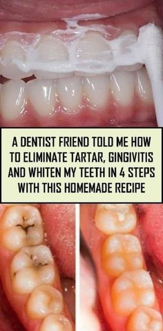 A Dentist Friend Told Me How To Eliminate Tartar, Gingivitis And Whiten My Teeth In 4 Steps With This Homemade Recipe - Fit Healthy Natural Remedies For Allergies, Natural Headache Remedies, Allergy Remedies, Natural Remedies For Anxiety, Natural Health Remedies, Herbal Remedies, Home Remedies, Teeth Health, Dental Health