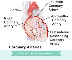 Clogged arteries are do dangerous, you may not even know that your arteries are blocked until something serious happens.. Healthy Heart, How To Stay Healthy, Clogged Arteries, Smoking Causes, Ldl Cholesterol, Best Supplements, Blood Vessels, Regular Exercise