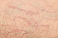Can Varicose and Spider Veins Be Eliminated? - Step To Health Get Rid Of Spider Veins, Get Rid Of Spiders, Varicose Vein Remedy, Varicose Veins Treatment, Natural Home Remedies, Natural Healing, Natural Oil, Holistic Healing, Health Remedies