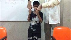 Sydenham's chorea in 10 year old boy