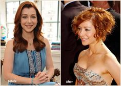 Alyson Hannigan Plastic Surgery Before and After Photo
