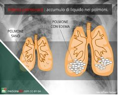 GENIO Italiano Giuseppe Cotellessa: Ultrasound-based tech measures fluid in the lungs....