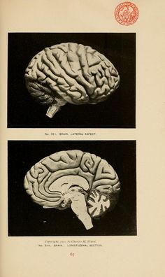 Brain. Lateral aspect - Longitudinal section. Catalogue of human and comparative skeletons, osteological specialties, and anatomical models (https://www.pinterest.com/pin/287386019949664098). Charles H. Ward, 1902.
