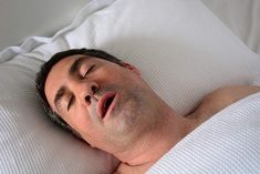 Even though snoring will not be so terrible for the person that is producing the noise, it usually is rather terrible for all who have to hear it. There is nothing harder than trying to sleep while hearing this noise. Types Of Sleep Apnea, What Is Sleep Apnea, Causes Of Sleep Apnea, Home Remedies For Sleep, Sleep Apnea Remedies, Snoring Remedies, Central Sleep Apnea, Sleep Debt, How To Stop Snoring