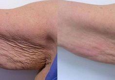 galvanic body spa sobre el tricep. Antes y después, mas info yamilagrassano@hotmail.com