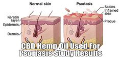 Hemp Oil for Psoriasis – May Be a Great Topical - https://elixinol.com/blog/hemp-oil-for-psoriasis?utm_source=rss&utm_medium=Friendly+Connect&utm_campaign=RSS #cbd #hemp