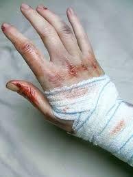 Image result for white gauze bandage hand