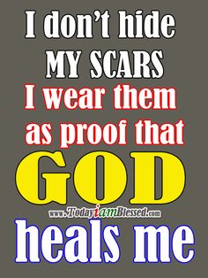 I don't hide my scars I wear them as proof that God heals me.