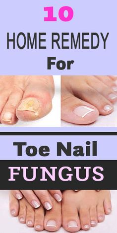 ThangamPalani Fungal infections are very common and can appear anywhere on the body. But toenail fungus is one especially common infection that many people struggle with. If caught in time, toenail fungus is easy to get Toenail Fungus Home Remedies, Fingernail Fungus, Fungus Toenails, French Acrylic Nails, Toenail Fungus Treatment, Fungal Infection, Natural Home Remedies, Holistic Remedies, Home Remedies