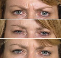 Want To Eradicate Brow Wrinkles Quickly And Without Botox? Carry Out These Facial Aerobics