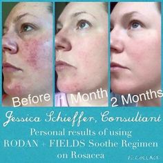 CALM YOUR SKIN   Our SOOTHE regimen targets redness, irritation, Eczema, Rosacea, Psoriasis, and inflammation.   Everyone deserve a calm, cool, healthy complexion and this delivers....it's even gentle enough for babies!   Do you or anyone you know need relief? Message me and let me help calm your skin!