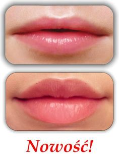 Big juicy lips compliments of juvederm I want those