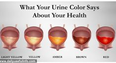 Here's What the Color of Your Pee Says about Your Health - Healthy Blog