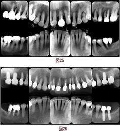 クリスタル歯科の審美治療の症例