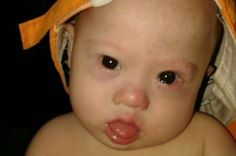 Aussie Parents: No One Told Us of Down Syndrome Baby - But surrogate mom in Thailand says that's not true | Newser Mobile