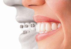 Alsó/felső fogszabályozás http://www.fogaszat-pest.hu/eleg-csak-felso-rogzitett-fogszabalyozo-vagy-alsofelso-szukseges/  #fogászat_budapest #fogszabályozó #fogszabályozás #fogszabályozás_budapest