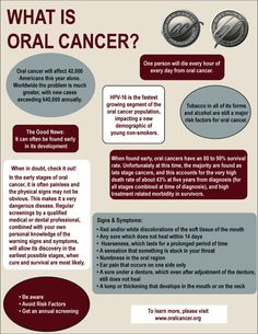 Oral Cancer Facts! Make sure your dentist is screening you and your teens for oral cancer. HPV numbers are increasing. Screen yearly even if your insurance doesn't cover it. It tends to be a low cost fee! #Nursing #Nurse #OralCancer